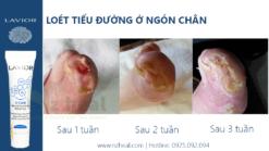 LAVIOR D-CARE Natural Diabectic Wound Care Gel trị loét tiểu đường ở ngón chân