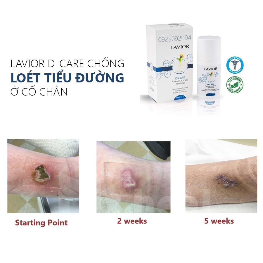 Gel chống loét tiểu đường LAVIOR D-CARE có tốt không?