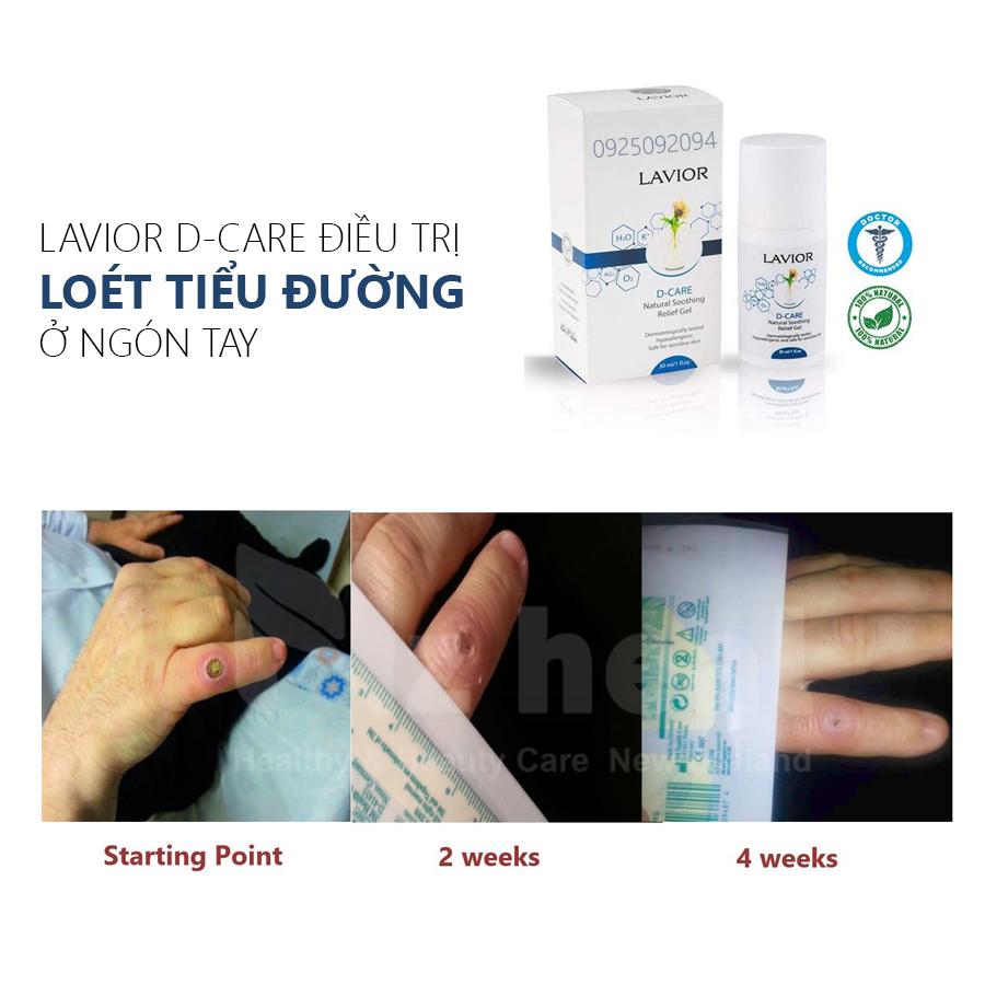Lavior d-care trị loét tiểu đường ở ngón tay