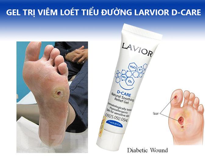 Gel điều trị viêm loét tiểu đường Lavior D-care 2