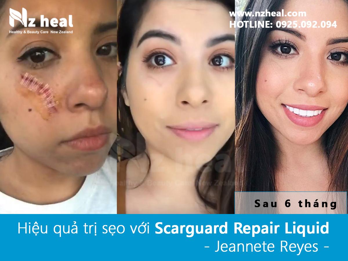 Trị sẹo lồi với gel Scarguard Repair Liquid