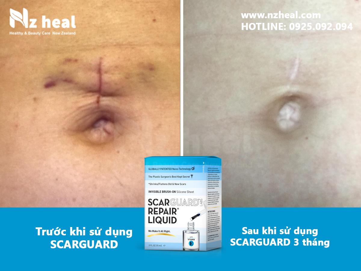 Gel trị sẹo lồi Scarguard Repair Liquid 15ml co tốt không?