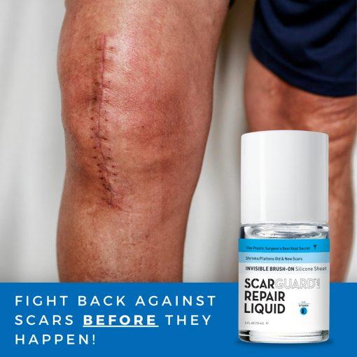 Scarguard MD có tốt không