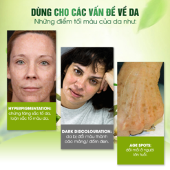 công dụng của kem trị nám dark spot remover