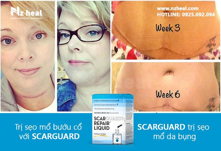 Review gel trị sẹo lồi Scarguard Repair Liquid 15ml