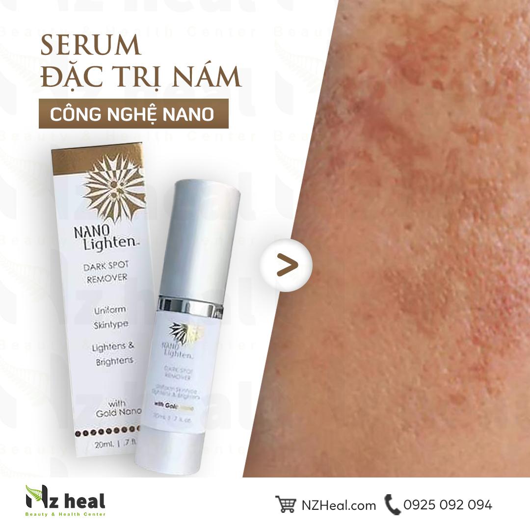 Serum trị nám Nano Lighten Dark Spot Remover 1