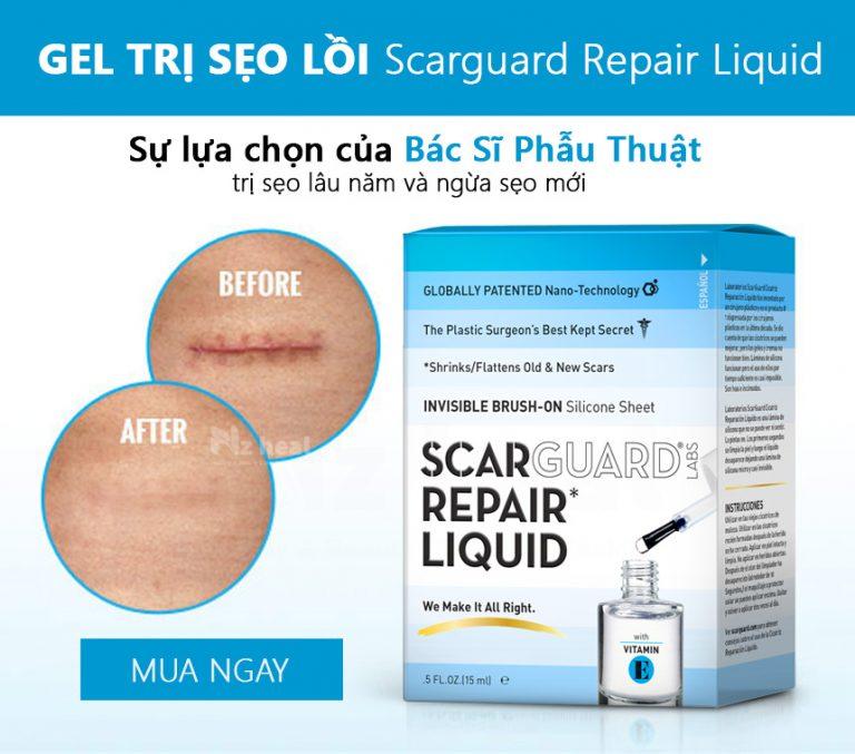 Scarguard Repair Liquid (Scarguard MD) - bước tiến lớn trong trị sẹo lồi