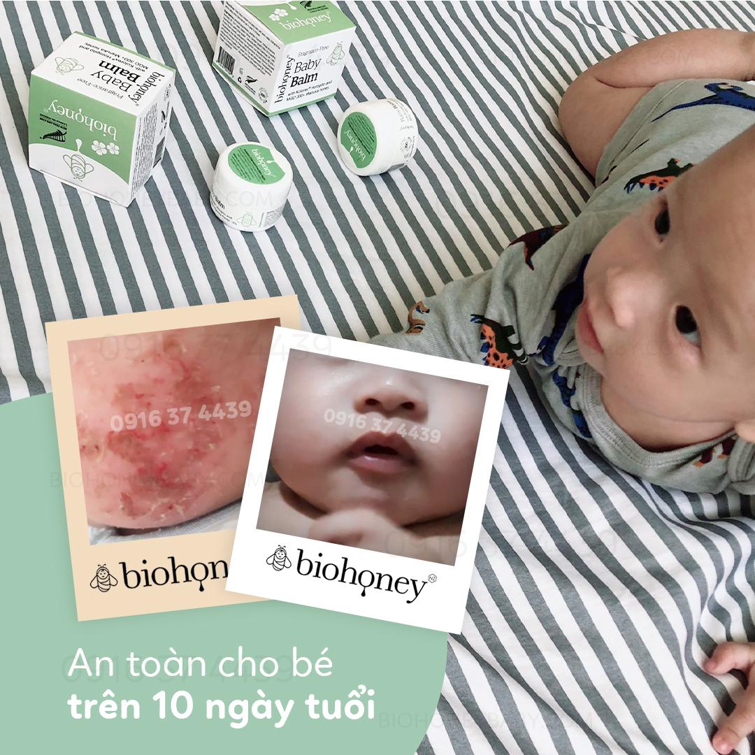Kem trị chàm sữa Biohoney Baby Balm có tốt không