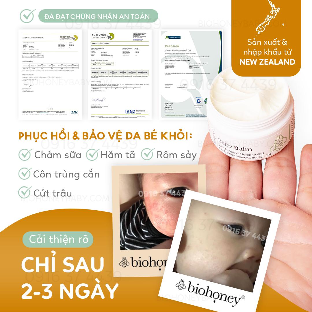 Kem trị viêm da Biohoney Baby Balm mật ong Manuka