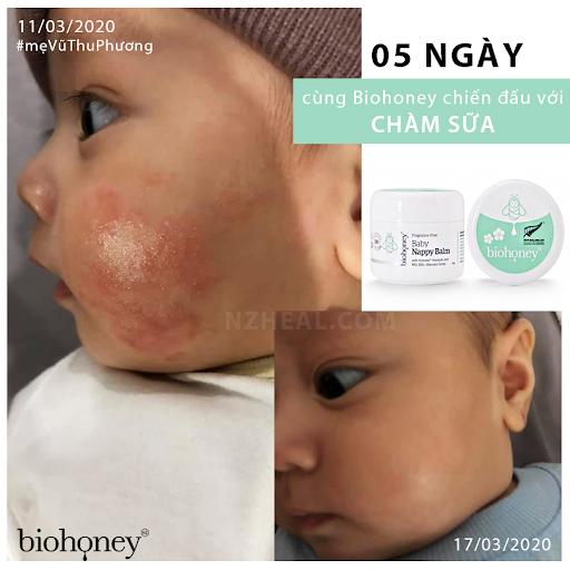 Biohoney Baby Nappy Balm-điều trị chàm sữa