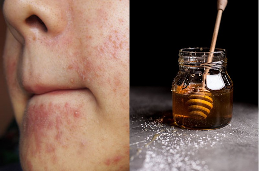 Sử dụng mật ong để chăm sóc da cần lưu ý một số điều
