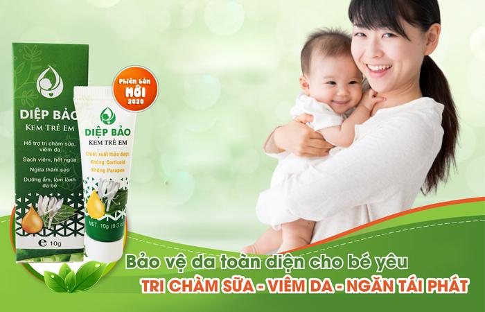 Top 7 kem trị chàm sữa an toàn với làn da em bé