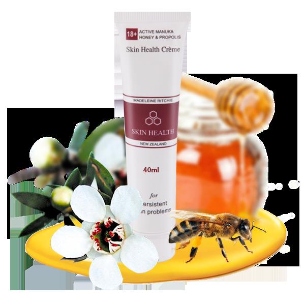Top 3 loại kem dưỡng ẩm giúp trị ngứa, dưỡng da được các bà bầu tin dùng nhất